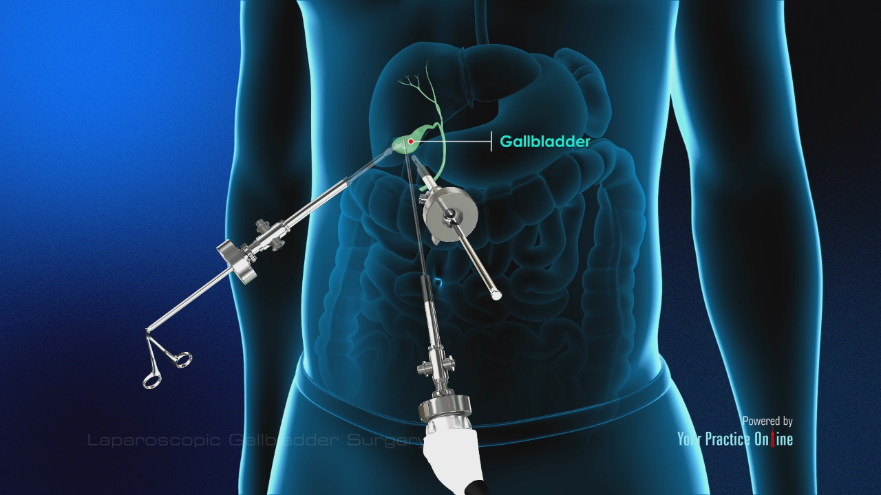 Want to hire services from specialists for gallbladder surgery?